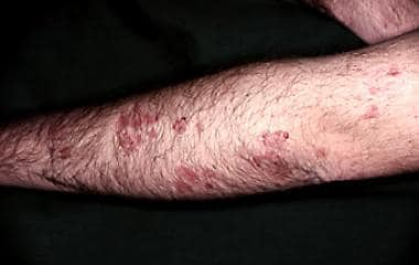 Polymorphic lesions on extensor surface of arm.