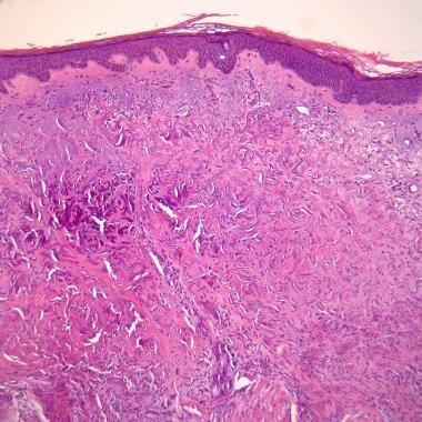 Pseudoxanthoma Elasticum Differential Diagnoses