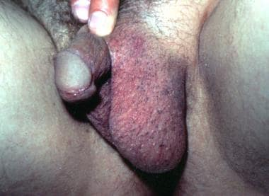 Speckled macules on the male external genitalia.