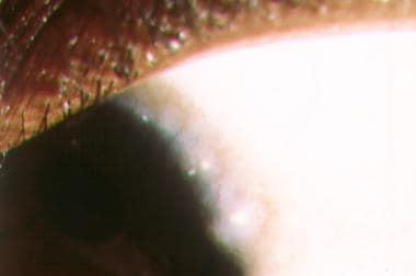 Atopic keratoconjunctivitis. Limbal Trantas dots c