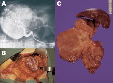 Patient with a large VIPoma. (A) Arteriogram showi