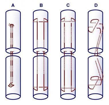 Two-strand repair techniques. (A) Tsuge, (B) modif