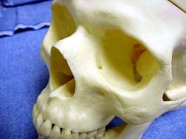 Another view of nasal bones.