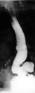 Barium esophagram demonstrating an epiphrenic dive