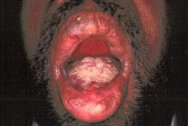 Oral aphthous ulcers secondary to Behçet disease.