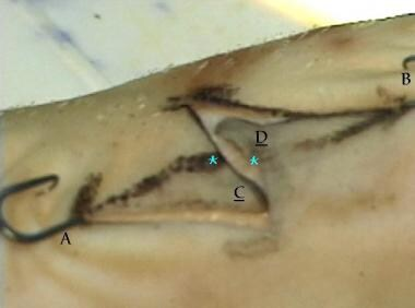 After transposition of C and D, the scar has reori