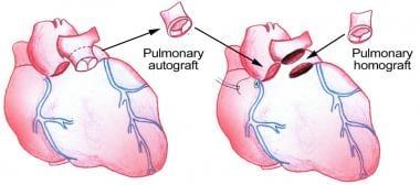 Pulmonary-valve autograft procedure for aortic val