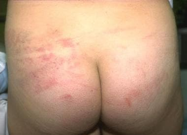 Bruises inflicted with belt. Image courtesy of Law