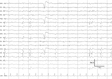 An EEG typical of the syndrome of benign childhood