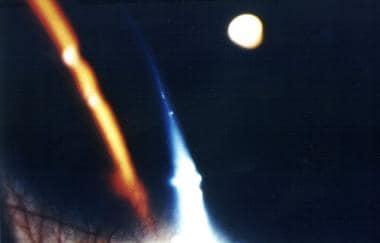 Beaded corneal nerve in Hansen disease.