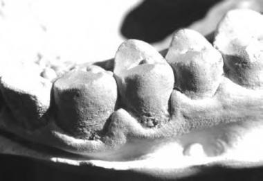 Periodontal disease in cast from an adult Batak fe