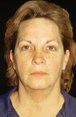 Midface facelift. Before: anteroposterior view. Pa