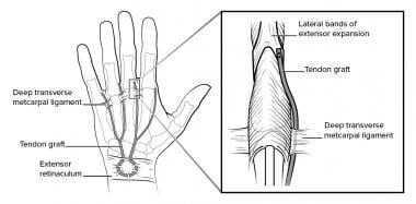 Dorsal tenodesis to control claw deformity.