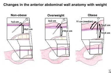 Changes in the anterior abdominal wall anatomy wit
