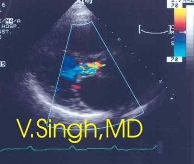 Aortic regurgitation. Two-dimensional (2D) color D