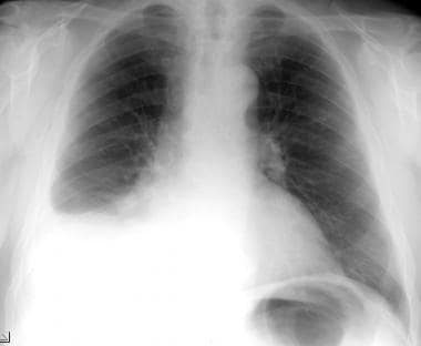 Posteroanterior chest radiograph in a 69-year-old