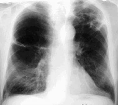 Posteroanterior chest radiograph from a 65-year-ol
