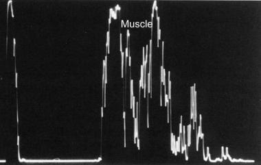 A-scan ultrasonogram reveals medium to high intern