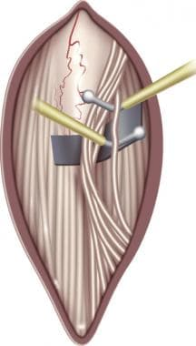 The L-2 dorsal root is easily identified. In an at