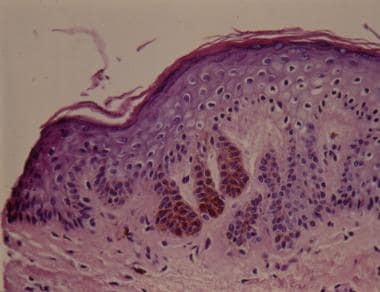 Histologic view showing elongated thin rete ridges