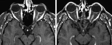 T1 contrast enhanced axial section of an MRI of th