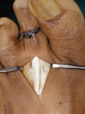 Claw toe. Extensor tendon exposure.
