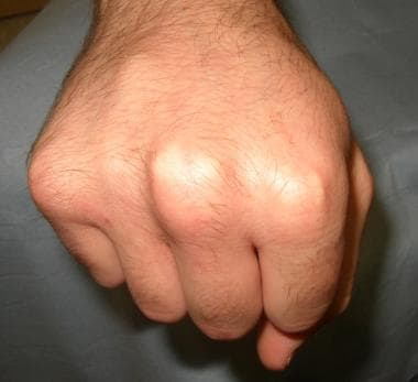 Deformity of metacarpal malunion also becomes prom