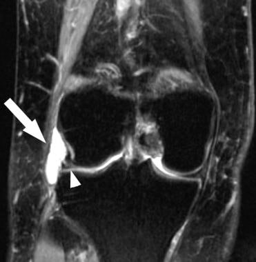 Meniscal cyst. Coronal T2-weighted magnetic resona
