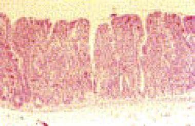 Tropical sprue (H&E, orig. mag. ×10).