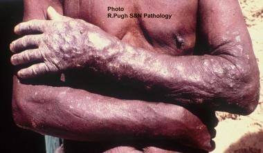 Filariasis. Onchocercomas of the forearm skin (sow