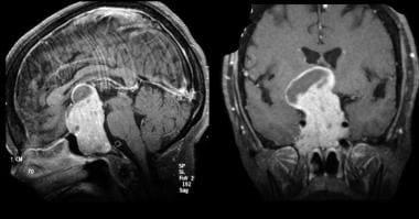 Giant pituitary adenoma. Contrast-enhanced MRI sca