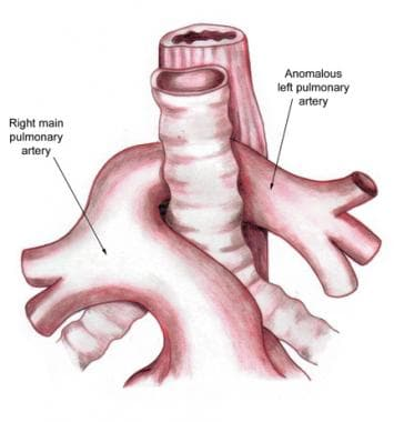 Aberrant left pulmonary artery or pulmonary artery