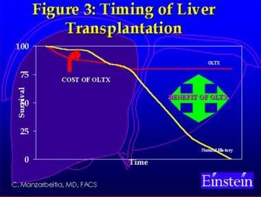 Timing of liver transplantation.