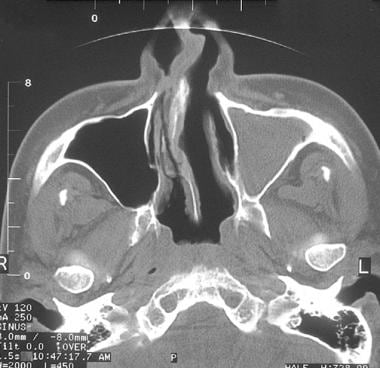 Axial CT scan demonstrating severe septal deviatio
