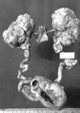 Pathologic specimen of end-stage autosomal dominan
