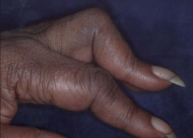 Boutonnière deformity. Image courtesy of David Boz