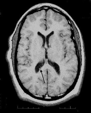 Axial T1-weighted MRI in a 15-year-old patient wit