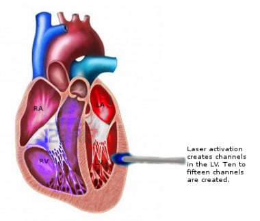Laser probe activated into the left ventricular wa