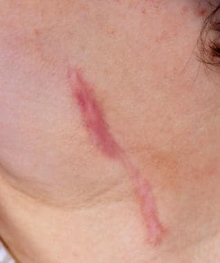 Hypertrophic scarring and keloids. Hypertrophic sc