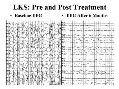 Epileptic and epileptiform encephalopathies. EEG i
