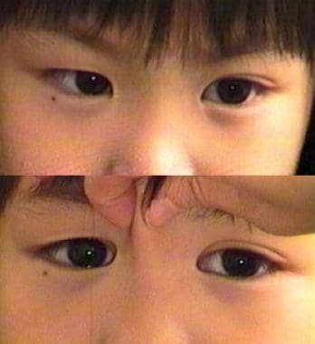 Pseudoesotropia: Background, Pathophysiology, Epidemiology
