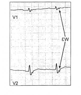 Epsilon wave on the electrocardiogram of a patient