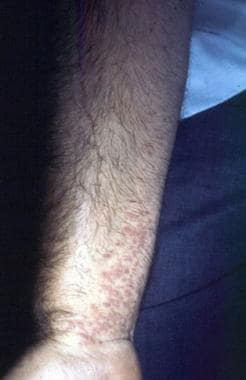 Lichen planus (volar wrist). Courtesy of Walter Re