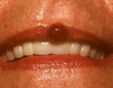 Pyogenic granulomas may occur at various sites. Mo