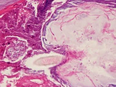 This photo is high-power hematoxylin and eosin sta