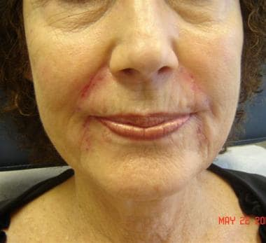 Patient 7. After photo. Dr. Bader injected Perlane