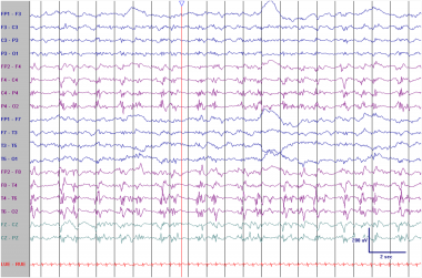 PLEDs in an elderly patient with an acute right mi