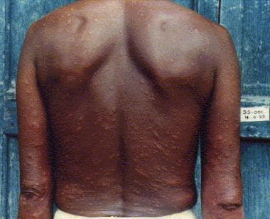 Patient with lepromatous leprosy showing multiple