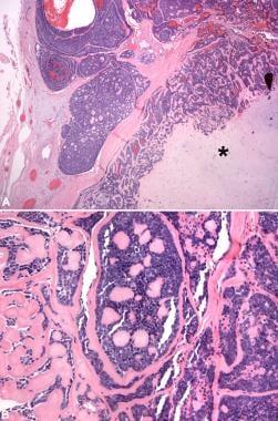 Adenoid cystic carcinoma ex pleomorphic adenoma. I