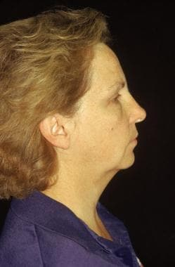 Midface facelift. Before: lateral view. Note the h